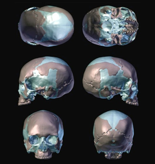 CT scan reconstructions of the Magdalenian Woman's skull, which assisted Elisabeth Daynes in producing the forensic bust.