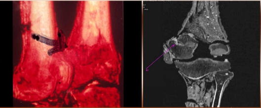 Details of the king's distal left femur. The arrow in the image at left points to the site of the fracture.