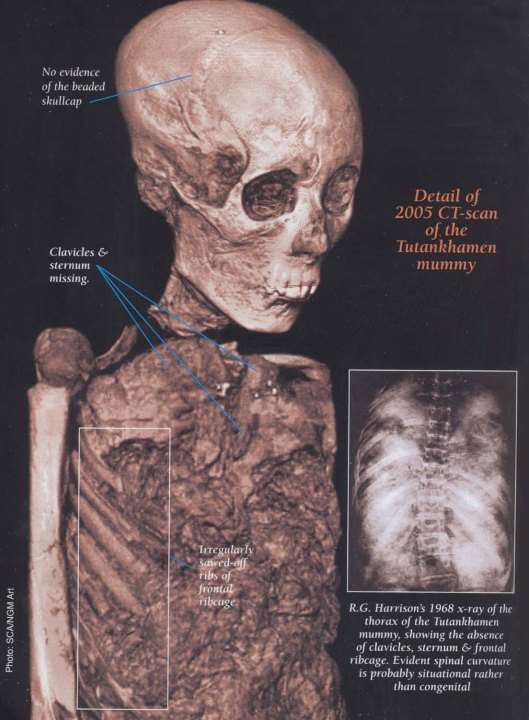 CT scan showing missing sternum and ribs, as well as other damage (adapted from Kmt magazine).