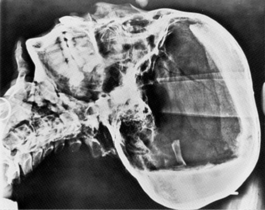 X-ray showing the courses of hardened resin as a white, opaque mass at the back and top of the cranial vault.