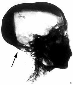 X-ray of King Tut's skull. Note the loose bone fragment within. The arrow points to the base of the occipital bone.