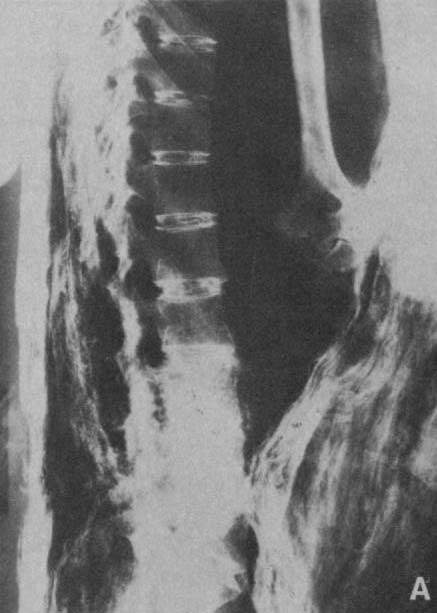 Lateral X-ray of Harwa; note the density of the intervertebral discs
